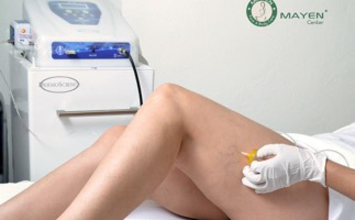 Tratamiento de arañas vasculares con carboxiterapia