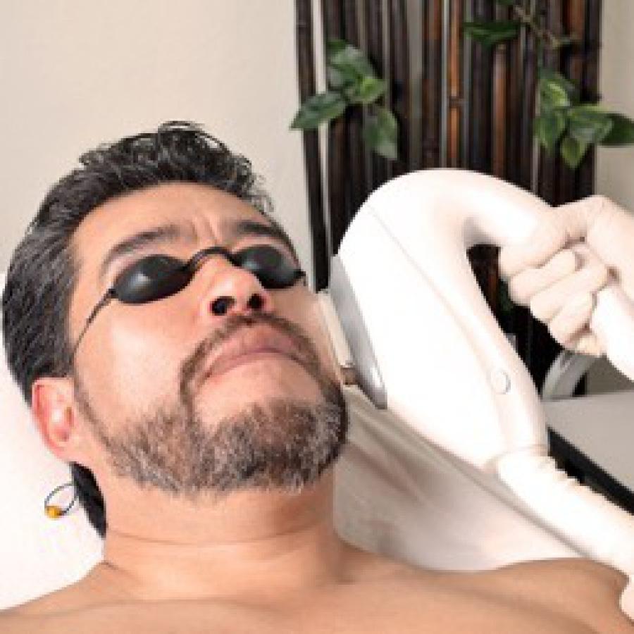 Depilación permanente IPL barba
